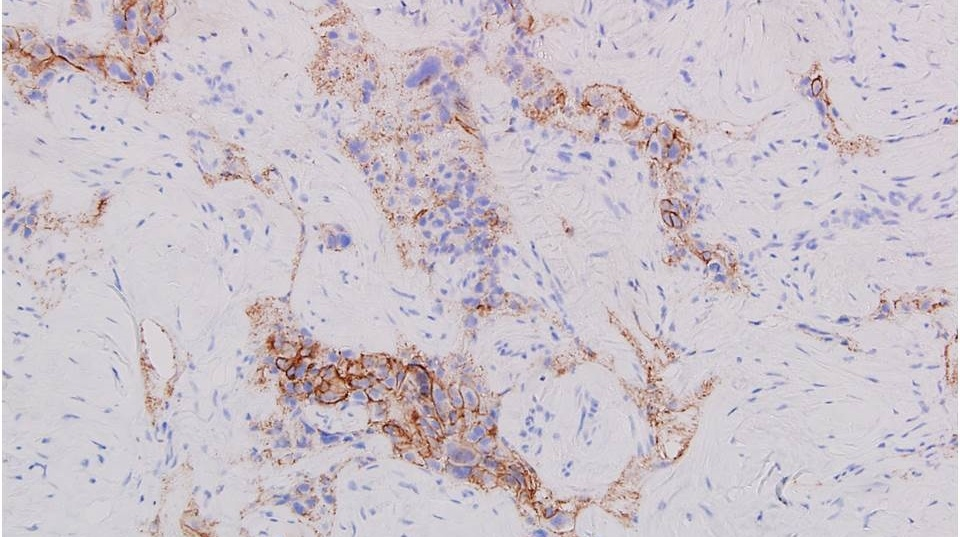 etastatic_tumor_cells_are_moderately_positive_for_HER2_2._IHC_stain_20X_magnification._Jian-Hua_Qiao_MD_FCAP_Los_Angeles_CA_USA_1-203385-edited.jpg