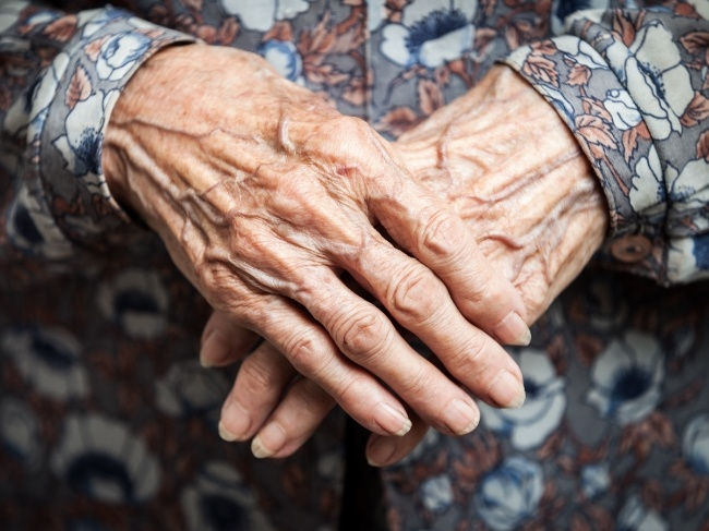 Alzheimer's research biomarker breakthrough