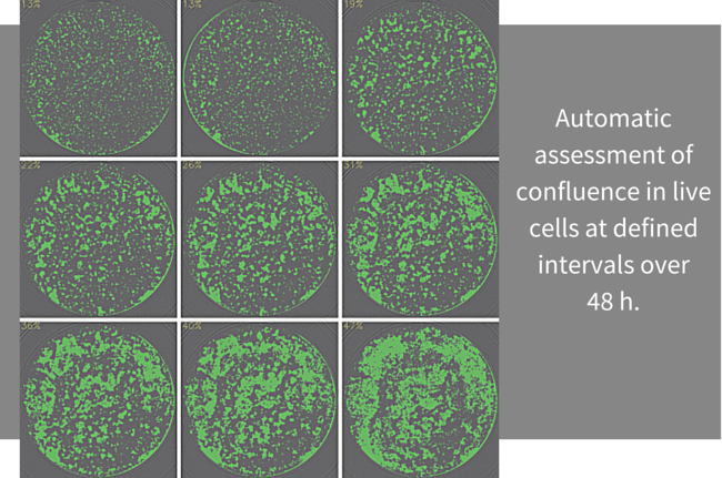 automatic assessment of confluence in live cells