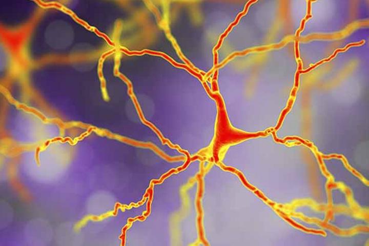 Mapping Hydroxymethylation Patterns in Neurodegenerative Disease
